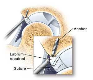 Cross section of hip joint showing arthroscope tip near anchor in bone under labrum. Closeup of arthroscope tip near anchor in bone under labrum. Sutures attached to anchor and tied around labrum hold torn edges together.