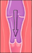 Cutaway view of vein
