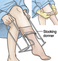 Woman using donner to put on compression stocking.
