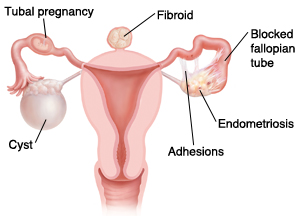 Illustration showing a cyst, a tubal pregnancy, a fibroid, a blocked fallopian tube, endometriosis, and adhesions of the female reproductive system