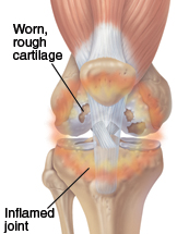 Image of a problem knee