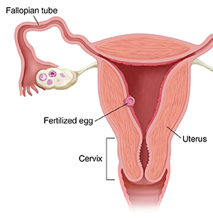 Image showing the fertilized egg traveling down the fallopian tube into the uterus.The cervix is also shown.