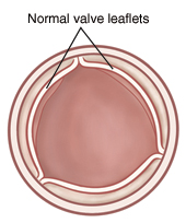 Top view of open aortic valve with normal leaflets.