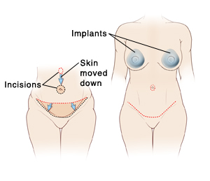Tummy Tuck with Breast Implants