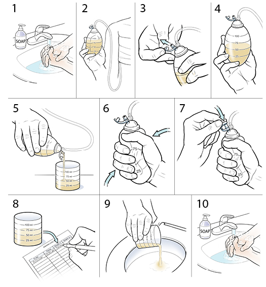 10 steps in how to empty a drain after surgery.