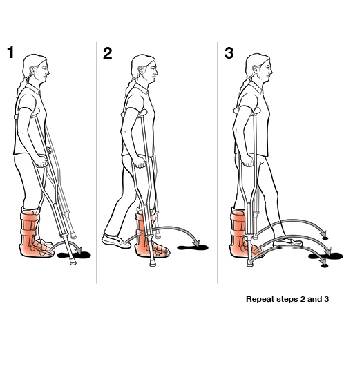 3 steps in using crutches with step through (weight bearing)