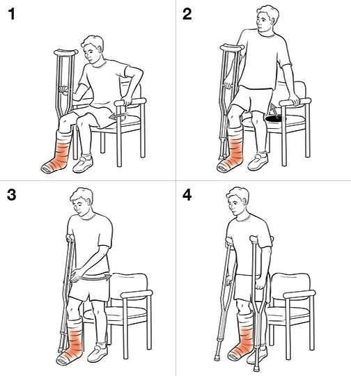 4 steps in standing with crutches (weight bearing)