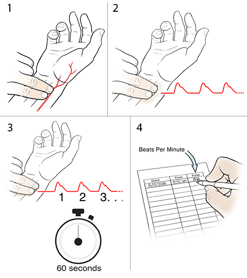 4 steps in taking a radial pulse.