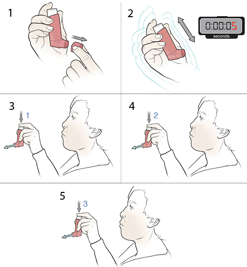 6 steps in cleaning a metered-dose inhaler.