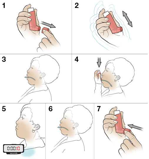 7 steps in using a metered-dose inhaler in mouth without a spacer