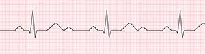 An ECG recording of a regular heartbeat.