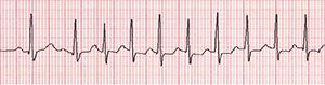 An ECG recording of an irregular heartbeat during an event.