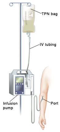 Arm with TPN catheter inserted near inner elbow. Port is near skin. Catheter is connected to infusion pump. IV tubing goes from pump to TPN bag.