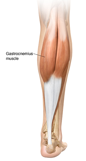 Back view of lower leg showing gastrocnemius muscle and Achilles tendon.
