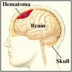 Bleeding between the brain and skull (hematoma).