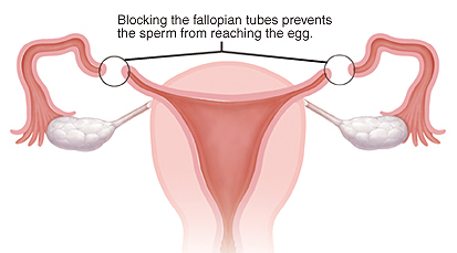 Blocking the fallopian tube prevents the sperm from reaching the egg.