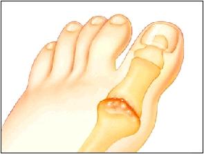 Arthritic big-toe joint