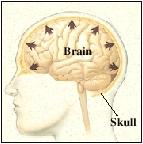 Brain swelling against the skull.