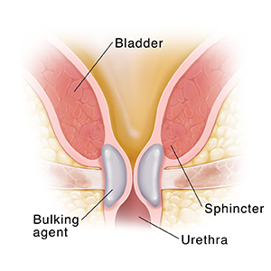 Closeup cross section of bladder neck showing bulking agent holding bladder neck closed.