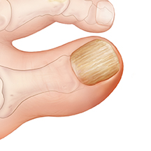 Closeup of big toe with thick nail.