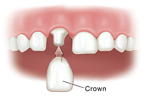 Closeup of teeth with one shaped tooth. Crown is being fitted on shaped tooth.