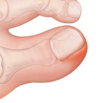 Closeup of toe with ingrown toenail.