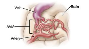 Closeup view of arteriovenous malformation (AVM) in the brain.