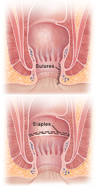 Cross section of anus showing sutures. Cross section of anus showing staples.