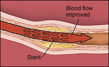 Cross section of artery in muscle with stent in place to hold artery open. Arrow shows improved blood flow.