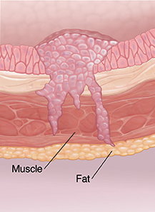 Cross section of bladder wall showing cancer at invasive stage.