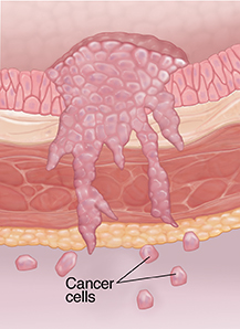 Cross section of bladder wall showing cancer at metastatic stage.