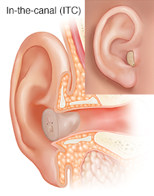 Cross section of ear showing outer, inner, and middle ear structures with in-the-canal hearing aid in place with inset of external view.