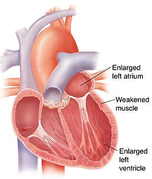 Cross section of enlarged heart. Heart walls are thin.