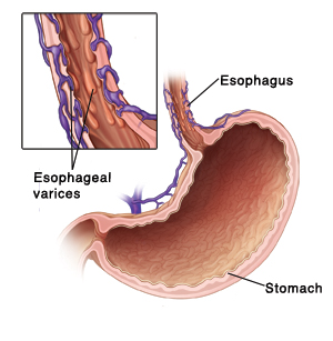 Cross section of esophagus and stomach showing veins around top part of stomach and lower esophagus. Closeup of cross section of lower esophagus showing esophageal varices.
