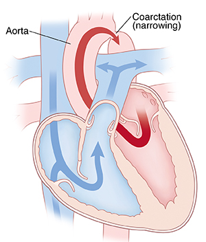 Cross section of heart showing coarctation of the aorta.