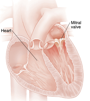 Cross section of heart showing mitral valve insufficiency.
