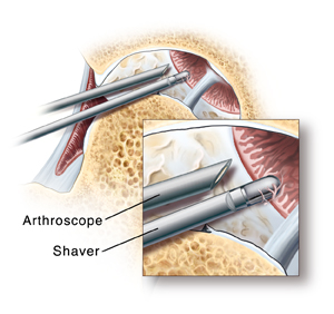 Cross section of hip joint with femoral head moved out of socket. Cartilage lining socket is damaged. Synovium lining joint is inflamed. Arthroscopic instruments are in joint near top of socket. Closeup of arthroscope tip inside joint with shaver removing damaged synovium.