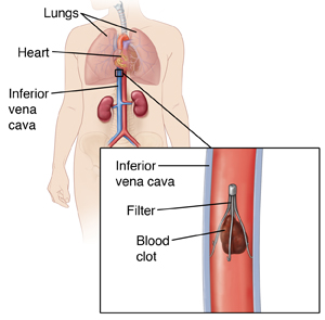 Cross section of inferior vena cava showing filter in place catching blood clot. Locator shows body outline with box to show location of filter in inferior vena cava.