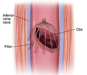 Cross section of inferior vena cava with filter trapping embolus.