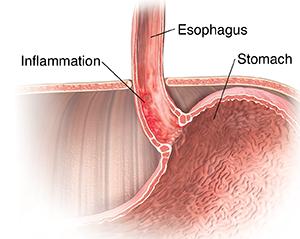 Cross section of lower esophagus showing Barrett's esophagus.