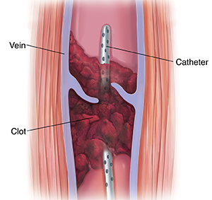 Cross section of muscle and varicose vein with blood clot. Catheter is inserted in vein through blood clot.