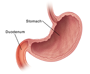 Cross section of stomach and duodenum. Duodenum is inflamed.