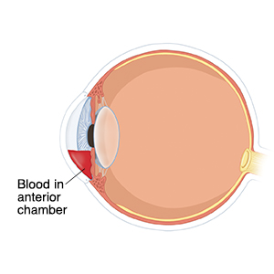 Cross section side view of front of eye showing blood in anterior chamber.