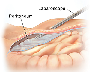 Cross section side view of lower abdomen showing laparoscope entering body above peritoneum.