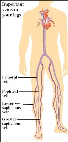 Cutaway view of leg veins