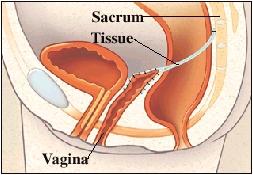 Cutaway view of vagina