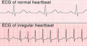 ECG of normal heartbeat. ECG of irregular heartbeat.