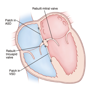 Front view cross section of heart showing atria on top and ventricles on bottom. Mitral and tricuspid valves are rebuilt. Patch is in ASD and another patch in VSD.