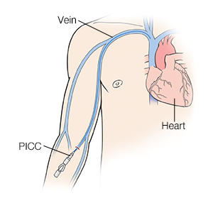 Front view of a man showing heart and veins with catheter inserted in forearm (PICC).