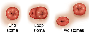 Front view of end stoma, loop stoma, and two stomas.